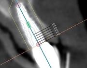 Hora est 1. Direct plaatsen van implantaat na extractie in de esthetische zone