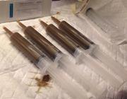 Fecale microbiota transplantatie: een nieuwe behandeling voor recidiverende Clostridium            difficile-infectie