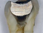 Hora est 2. Is door amalgaam verkleurd dentine een geschikt substraat voor hechting van composiet?