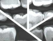 Tandverplaatsing