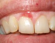 Gelokaliseerde (juveniele) spongiotische hyperplasie van de gingiva: een minder bekende aandoening