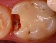 Preventieve tandheelkunde 5. Secundaire cariës