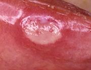 Orale manifestaties van colitis ulcerosa