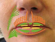 Periorale behandelingsmogelijkheden in de cosmetische aangezichtschirurgie