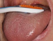 Preventieve tandheelkunde 7. Halitose de mond uit helpen