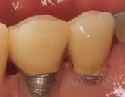 Serie: Hora est. Preventie en behandeling van peri-implantaire ziektes: reiniging van titanium implantaatoppervlakken