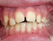 Serie: Hora est. Factoren die subjectieve en objectieve orthodontische behandelbehoefte en gerelateerde levenskwaliteit van kinderen beïnvloeden