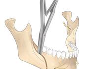 Serie: Hora est. De bilaterale sagittale splijtingsosteotomie: risicofactoren voor complicaties en voorspelbaarheid van de splijttang-splijtheveltechniek