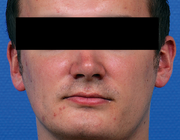 Mandibulaire functie na condylectomie voor unilaterale condylaire hyperplasie