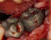 Vervanging van ernstig beschadigde molaren met behulp van 3D-technieken