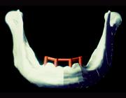 Proefschriften 25 jaar na dato 49. Biomechanische analyse van bot rond tandheelkundige implantaten in de edentate onderkaak