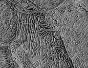 Serie: Hora est. Het effect van radiotherapie op de morfologie van de orale mucosa