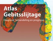 Atlas over gebitsslijtage