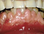 Serie: Medicamenten en mondzorg. Proliferatie van de gingiva