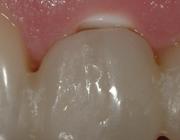 De roze en witte esthetiek van een nieuw zirkoniumdioxide implantaat