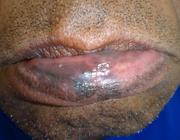 Een spontaan dove lip met reeds bestaande pigmentafwijkingen van de onderlip