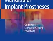 De implantaatgedragen mandibulaire gebitsprothese