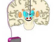Behandelingsmogelijkheden voor de ziekte van Parkinson