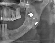 Herkenning van wekedelenopaciteiten op een panoramische röntgenopname: heterotopische ossificaties en corpora aliena