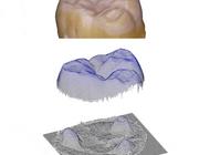 Komvormige defecten in occlusale vlakken van molaren: meer dan alleen erosieve belasting?