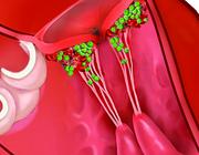 AB-profylaxe en endocarditis