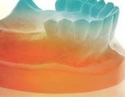 Kratochvil's principes van de partiële gebitsprothese