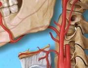 Prevalentie van verkalkingen van de arteria carotis op een panoramische röntgenopname