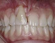 Risico's van orthodontische behandeling