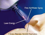 Laserbehandeling in wortelkanalen