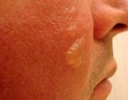Een plotselinge roodheid en zwelling van het aangezicht