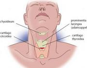 Spoedtracheotomie voor luchtwegobstructie na postoperatieve bloeding geassocieerd met gebruik van een antidepressivum