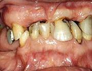 Behandeling van een sterk gemutileerde dentitie
