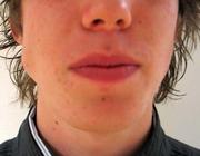 Een zwelling ter plaatse van de angulus mandibulae bij occlusie