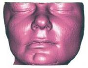 Asymmetrie van het aangezicht: de meerwaarde van cone beam-computertomografie