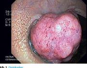 Bevolkingsonderzoek naar darmkanker