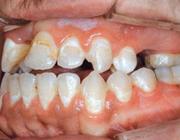 Wittevleklaesies tijdens orthodontische behandeling: preventief beleid