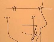 Het streven naar faciale harmonie