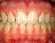 Zwelling van de gingiva bij orthodontische behandeling met volledig vaste apparatuur