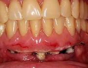 Consensus over peri-implantaire infecties