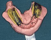 Periodieke mondonderzoeken en specifieke nazorg bij partiële gebitsprothesen