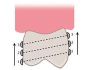 Het ontwerpen van conventionele frameprothesen