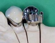 (Semi)precisieverankering bij frameprothesen