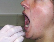 Orale kinesiologie en levenskwaliteit