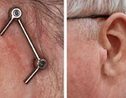 Levenskwaliteit en behandeling met orale implantaten