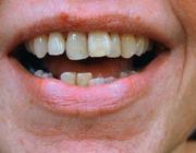 Cosmetische behandeling van het gebit