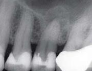 De toevallige vondst van een parodontitis apicalis