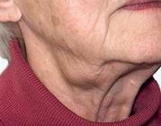 Een vergrote lymfeklier in de hals: wat te doen?