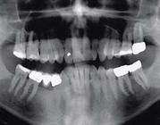Een patiënt met hypesthesie in de mandibula