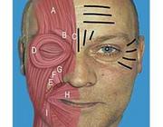 Cosmetische aangezichtschirurgie. De toepassing van botulineneurotoxine type A