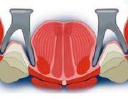 Anatomie en de afdrukprocedure voor een volledige gebitsprothese